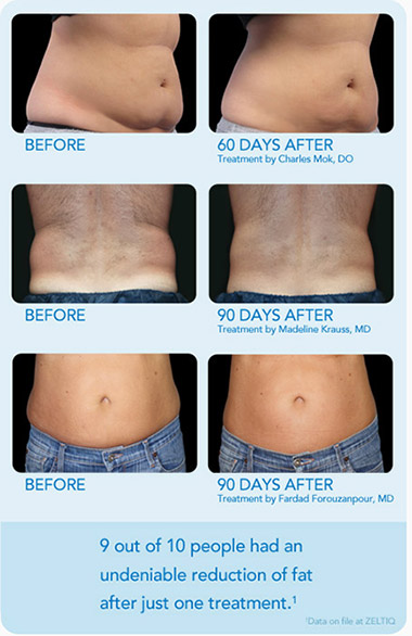 Coolsculpting Baton Rouge Williamson Cosmetic Center