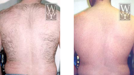 Laser hair removal baton rouge remove unwanted hair gonzales laser hair removal before and after solutioingenieria Image collections