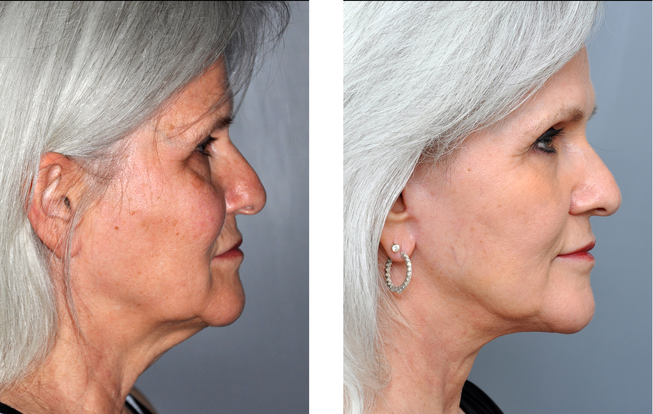Can recommend Facial resurfacing before and after casually come