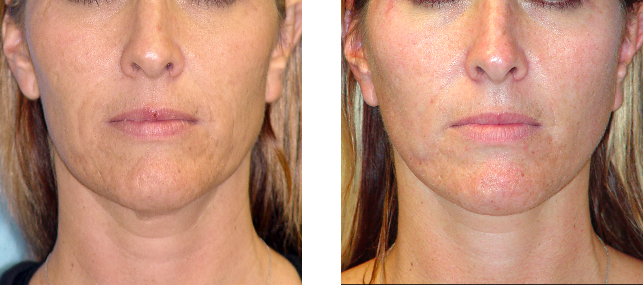 Are absolutely Facial resurfacing before and after