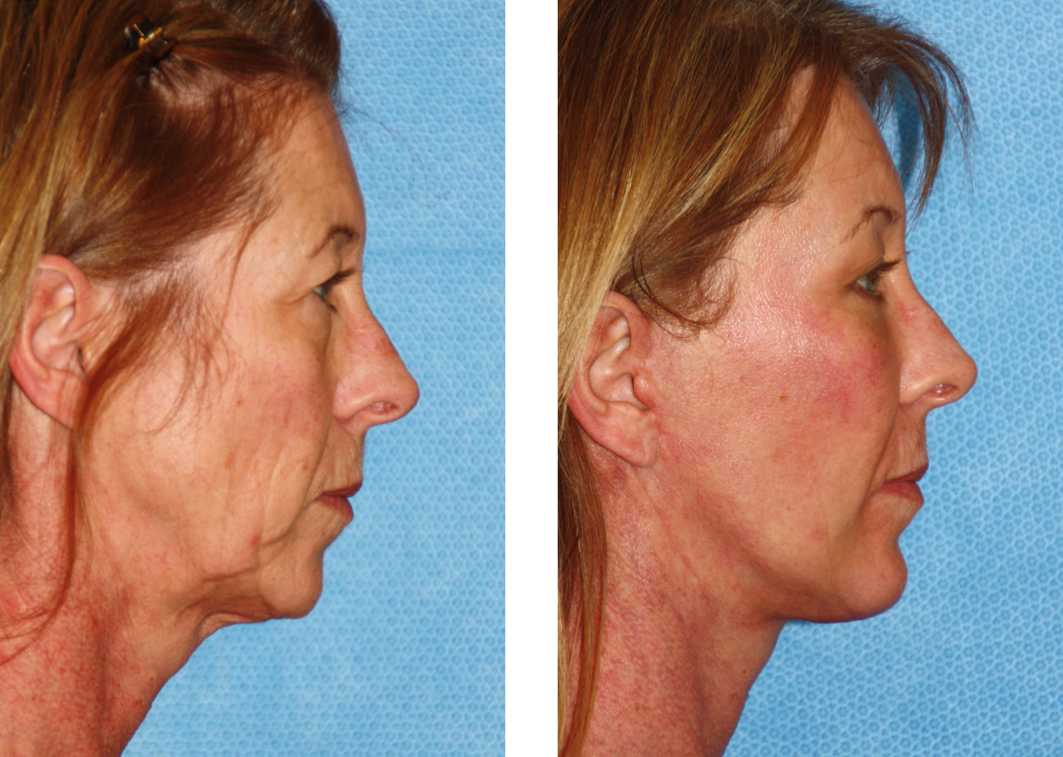 Labour. Facial resurfacing before and after