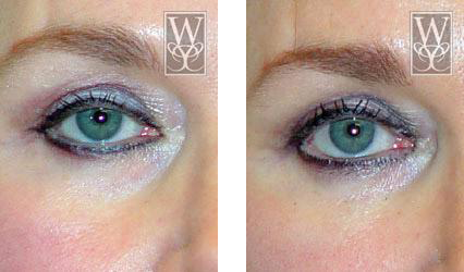 Restylane gallery williamson cosmetic center before for Tattoo removal in baton rouge