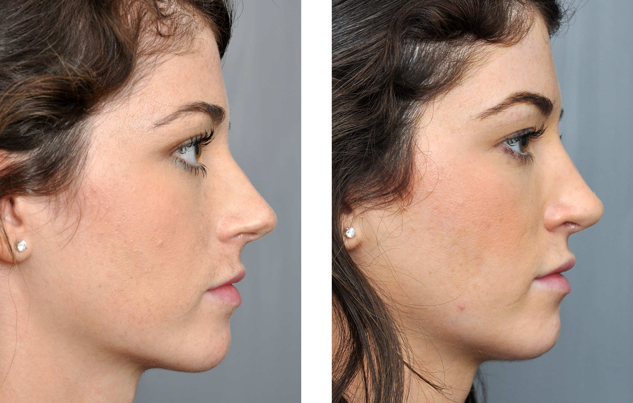 Rhinoplasty Before And After Rhinoplasty Bat...