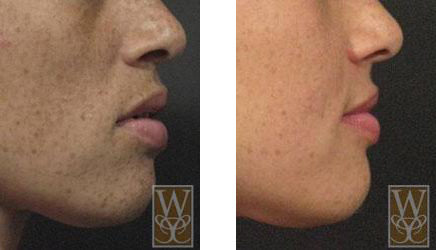 Sculptra aesthetic gallery williamson cosmetic center for Tattoo removal baton rouge