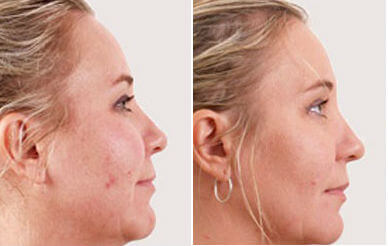 Exilis Before & After Baton Rouge
