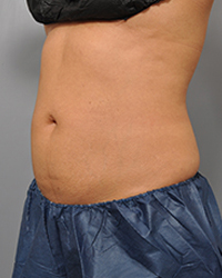 After Coolsculpting