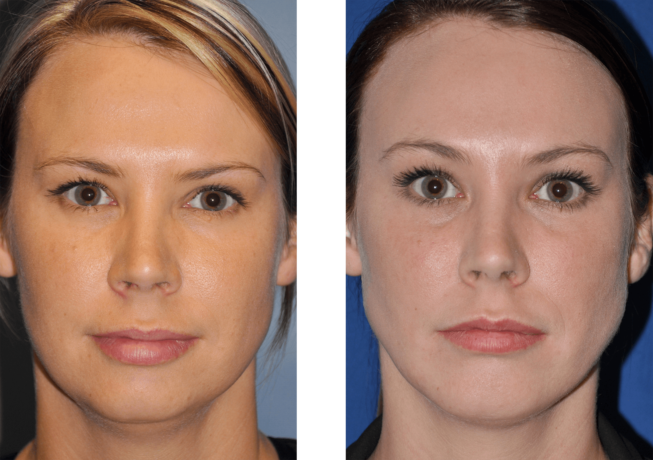 Endoscopic brow lift before and after in beverly hills ...
