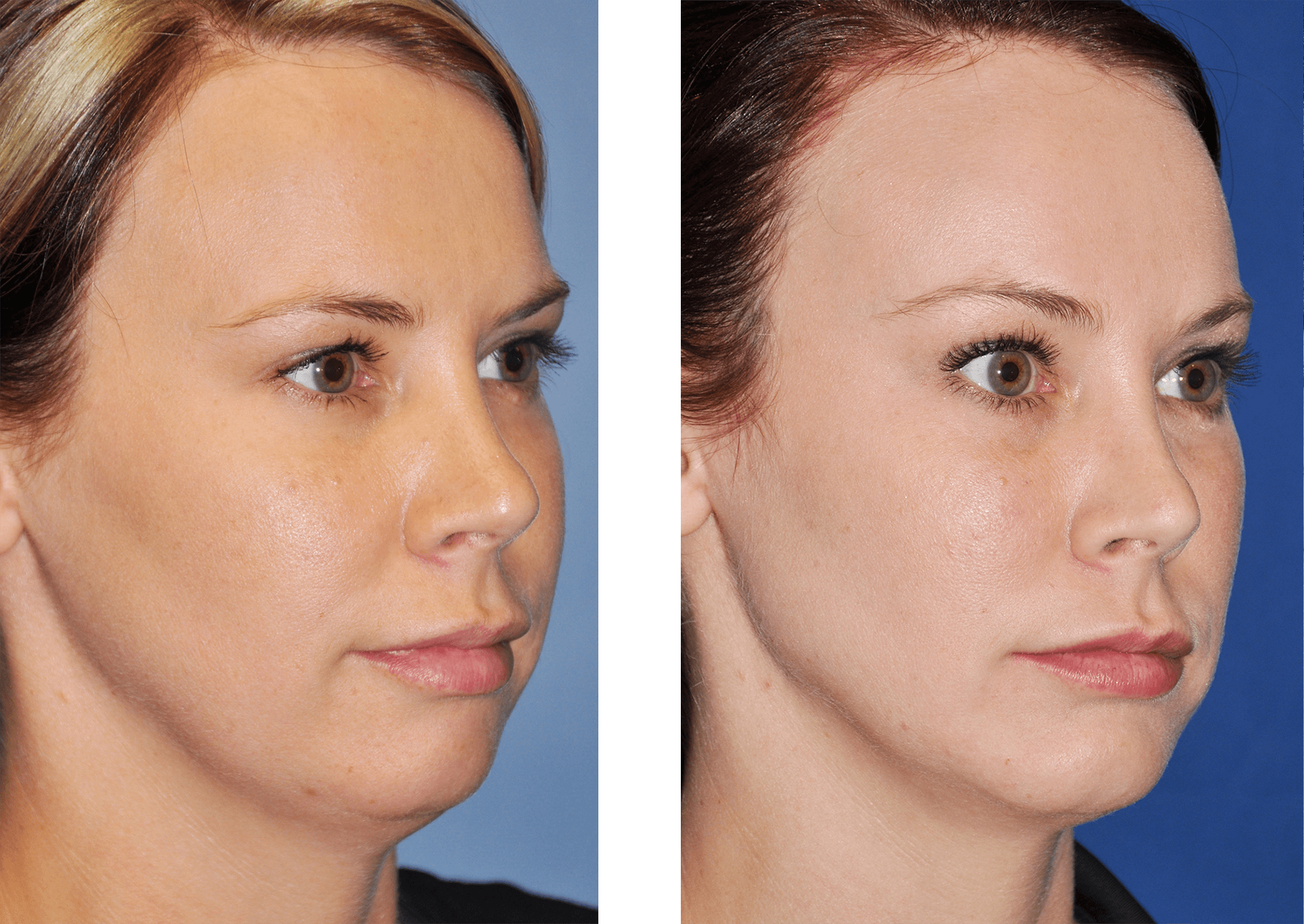 Brow Lift Gallery Williamson Cosmetic Center Before After