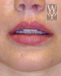 Lip Lift After