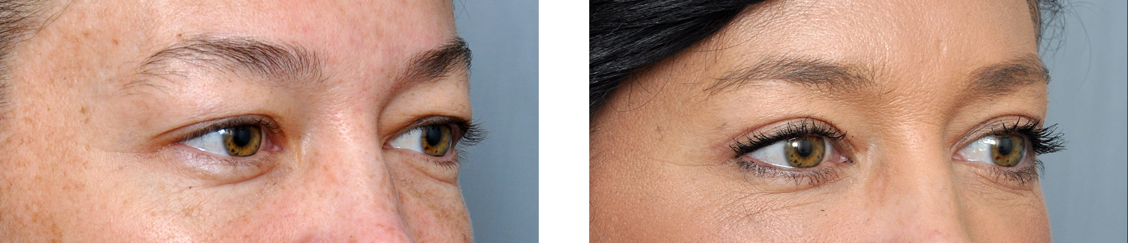 Lower blepharoplasty gallery williamson cosmetic center for Tattoo removal in baton rouge