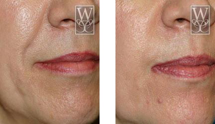 Restylane gallery williamson cosmetic center before for Tattoo removal baton rouge