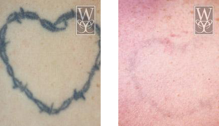 Tattoo Removal Baton Rouge | Ink Removal Gallery | Williamson Cosmetic
