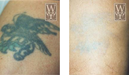 Tattoo Removal Gallery | Williamson Cosmetic Center