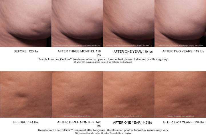 Before & After Cellulite Treatment